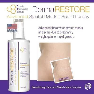 PRI Dermarestore- The #1 Clinically proven stretch Mark and Scar Treatment